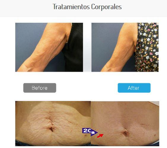 MC-1-tratamientos corporales
