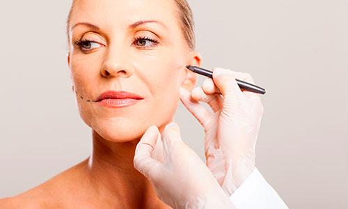 Tratamiento con hilos tensores: da a tu piel una segunda juventud