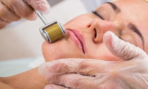los-mejores-tratamientos-de-belleza-para-renovarse-marichecorrecher