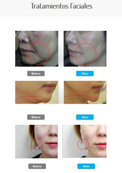 MC-1-tratamientos faciales