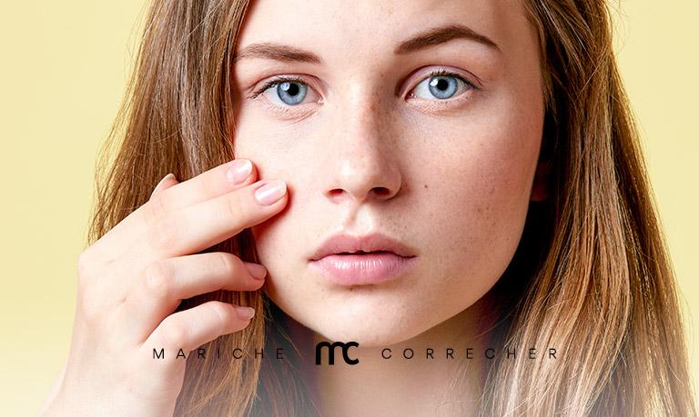tratamientos para el acne - mariche correcher
