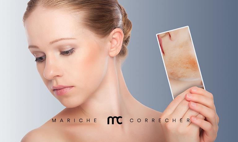 como quitar las manchas en la piel - mariche correcher