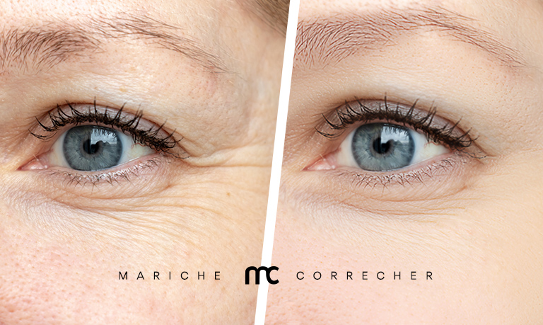 collagen - mariche correcher